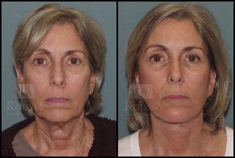 Facelift Gallery - Patient 24558324 - Image 3