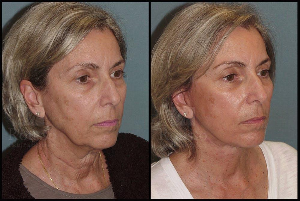 Facelift Gallery - Patient 24558324 - Image 2