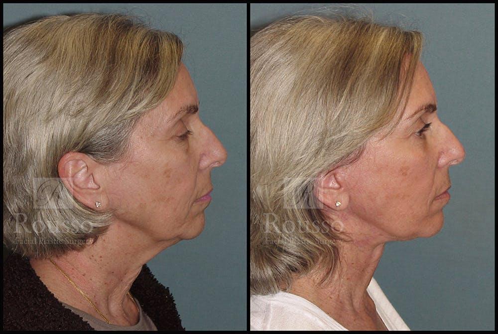 Facelift Gallery - Patient 24558324 - Image 1