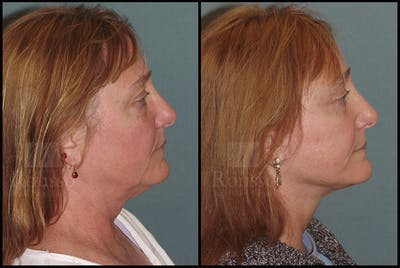 Facelift Gallery - Patient 24558553 - Image 1