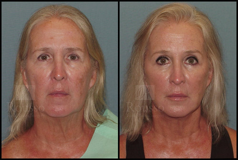 Facelift Gallery - Patient 24558554 - Image 3