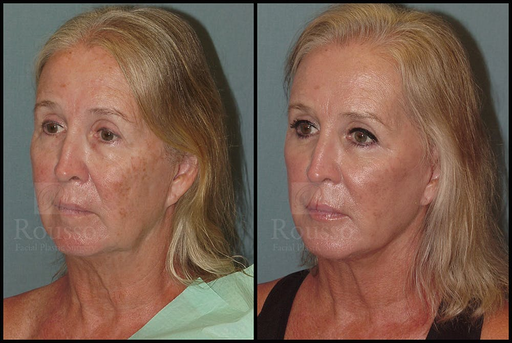 Facelift Gallery - Patient 24558554 - Image 2