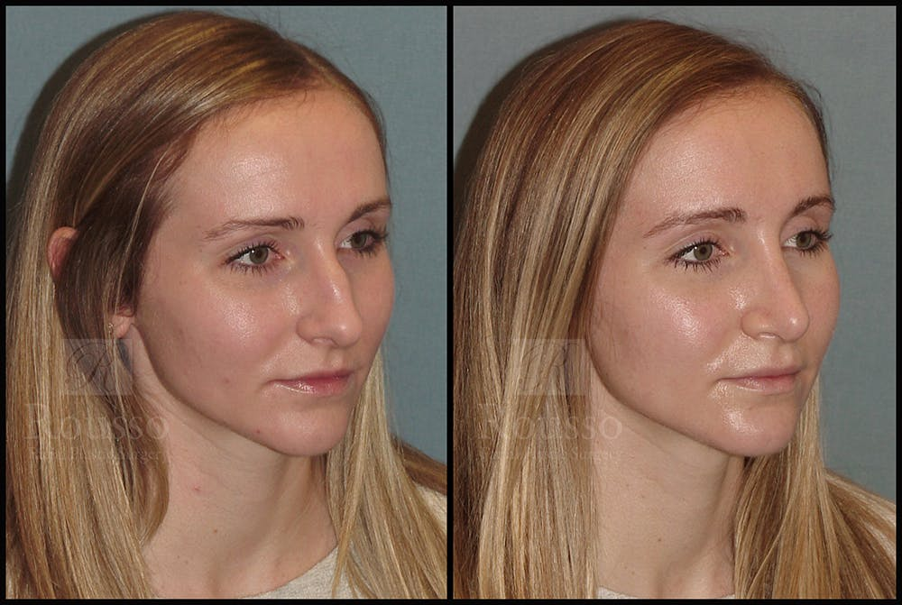 Rhinoplasty Gallery - Patient 25134122 - Image 1