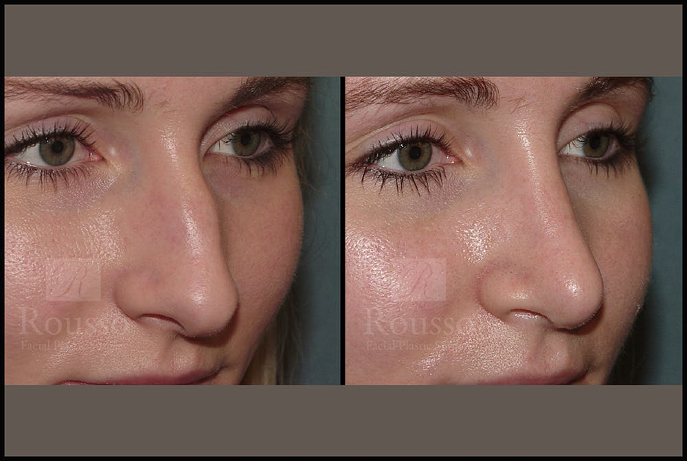 Rhinoplasty Gallery - Patient 25134122 - Image 2