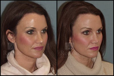 Rhinoplasty Gallery - Patient 25136024 - Image 1