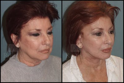 Facelift Gallery - Patient 25136041 - Image 2