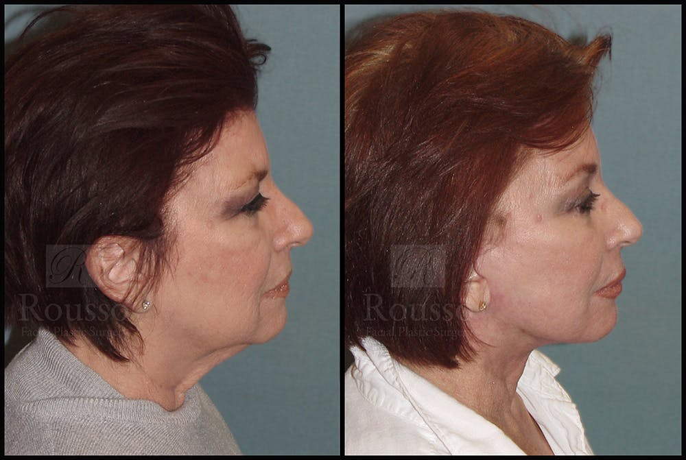 Facelift Gallery - Patient 25136041 - Image 1