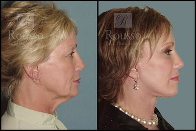 Facelift Gallery - Patient 1993263 - Image 1