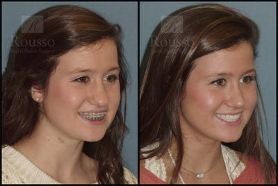 Rhinoplasty Gallery - Patient 25277298 - Image 1