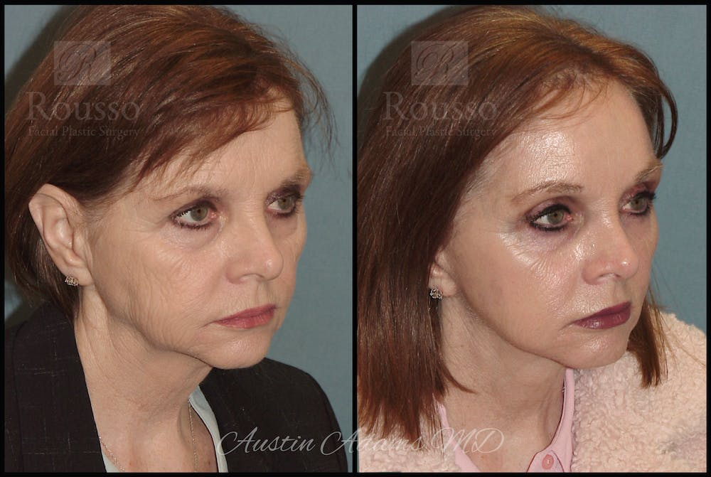 Facelift Gallery - Patient 25454294 - Image 2