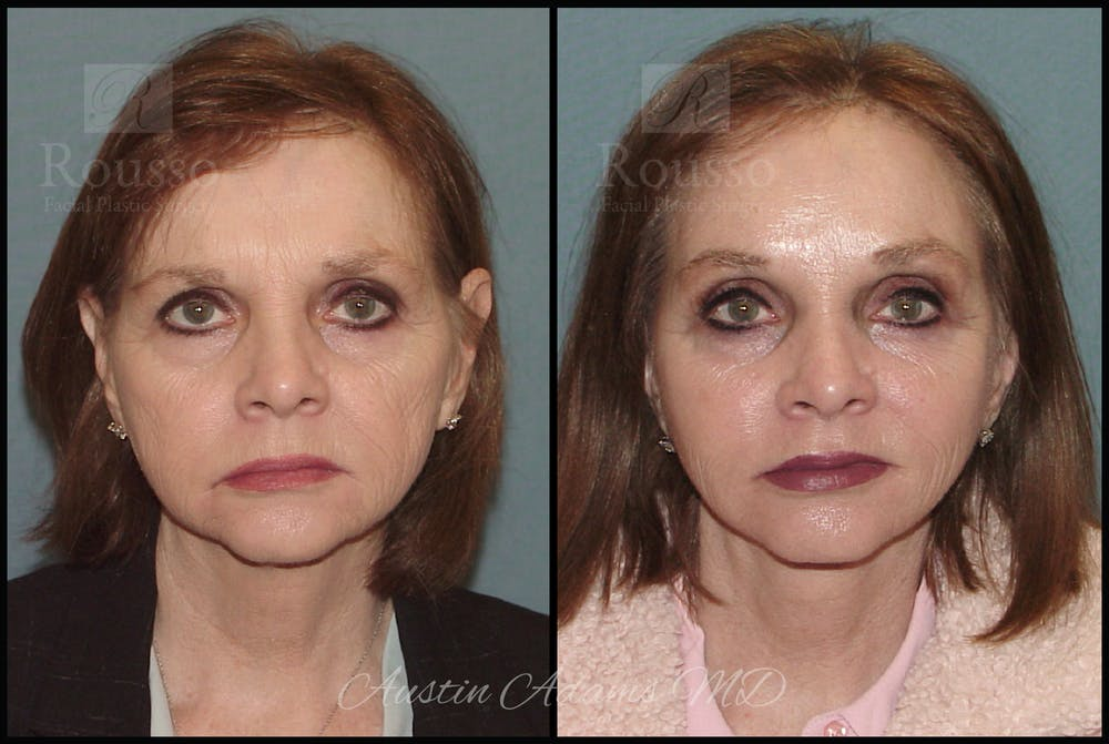 Facelift Gallery - Patient 25454294 - Image 3