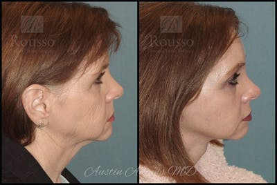 Facelift Gallery - Patient 25454294 - Image 1