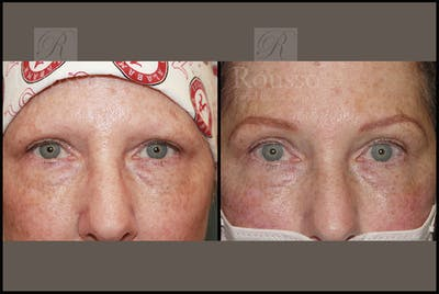 Microblading Gallery - Patient 26207210 - Image 1