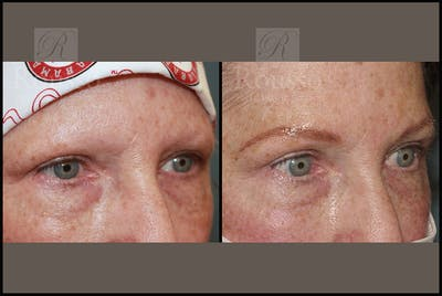 Microblading Gallery - Patient 26207210 - Image 2