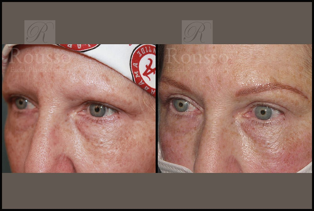 Microblading Gallery - Patient 26207210 - Image 3