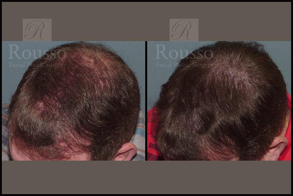 Scalp MicroPigmentation Gallery - Patient 26207216 - Image 1