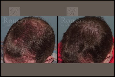 Scalp MicroPigmentation Gallery - Patient 26207216 - Image 1