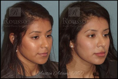 Rhinoplasty Gallery - Patient 26332664 - Image 1