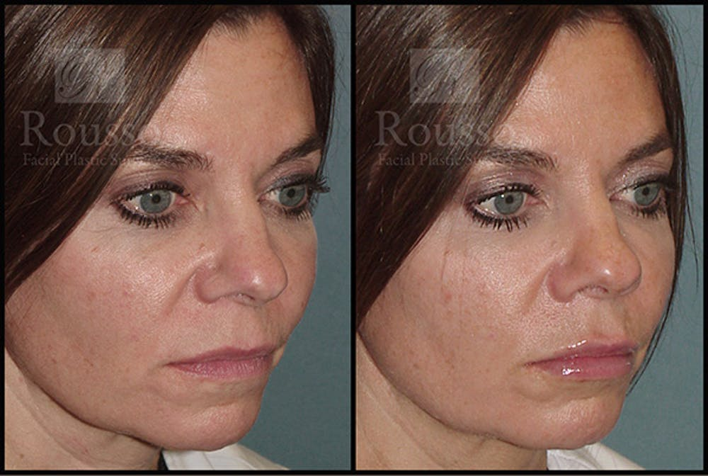 Fillers Gallery - Patient 5923191 - Image 1