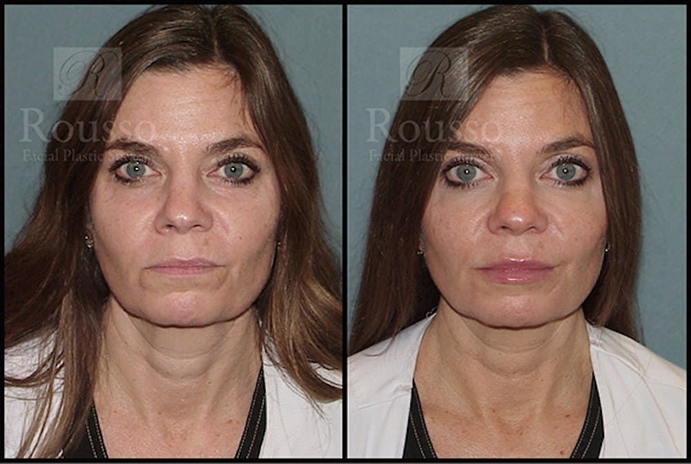 Fillers Gallery - Patient 5923191 - Image 2
