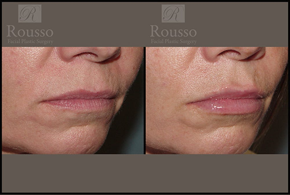 Fillers Gallery - Patient 5923191 - Image 3