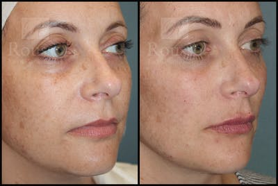 Liquid Facelift Gallery - Patient 33836196 - Image 1