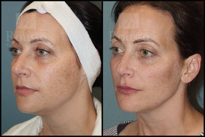 Liquid Facelift Gallery - Patient 33836196 - Image 2