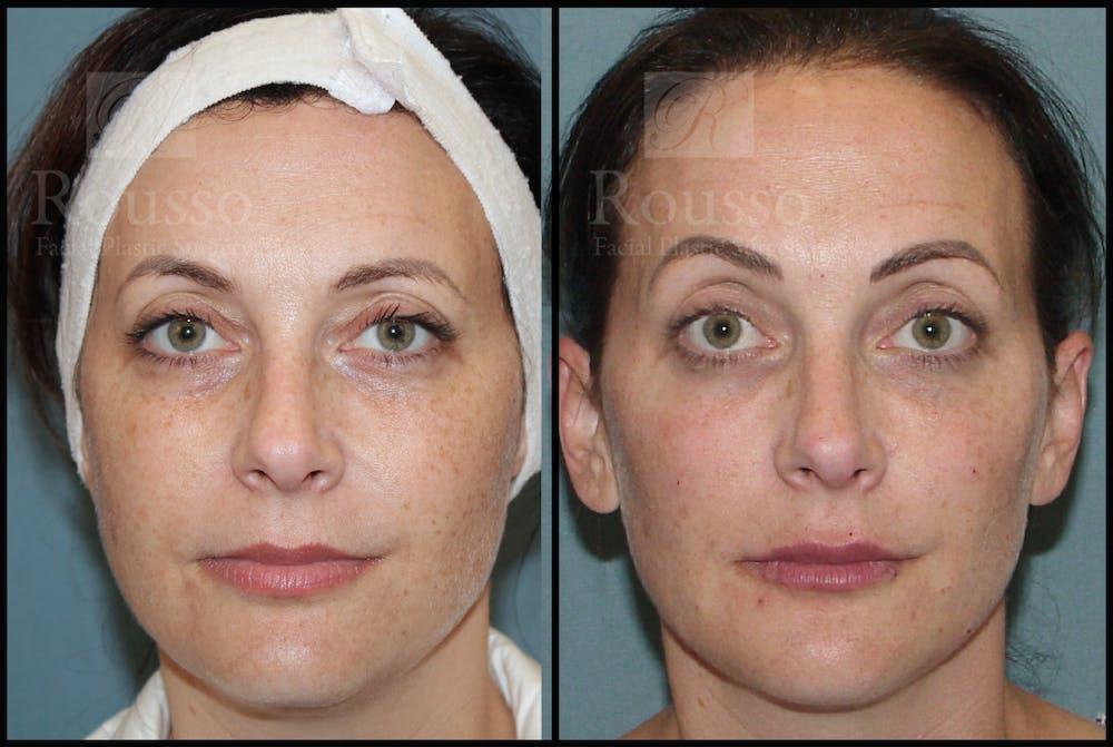 Liquid Facelift Gallery - Patient 33836196 - Image 3