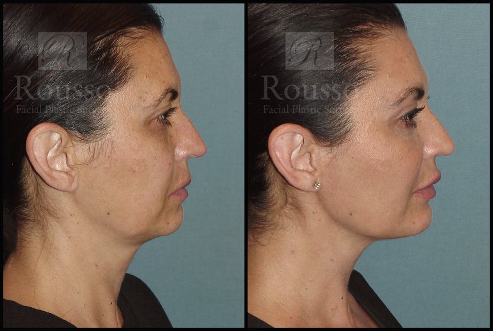 Liquid Facelift Gallery - Patient 33836203 - Image 1