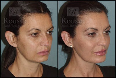 Liquid Facelift Gallery - Patient 33836203 - Image 2