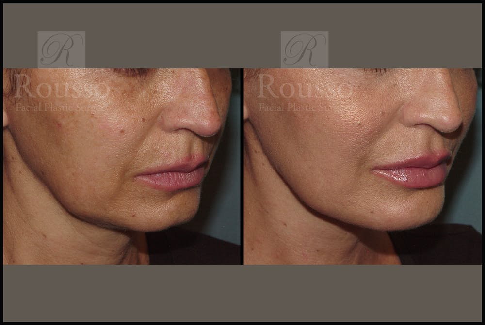 Liquid Facelift Gallery - Patient 33836203 - Image 3