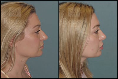 Rhinoplasty Gallery - Patient 50818352 - Image 1