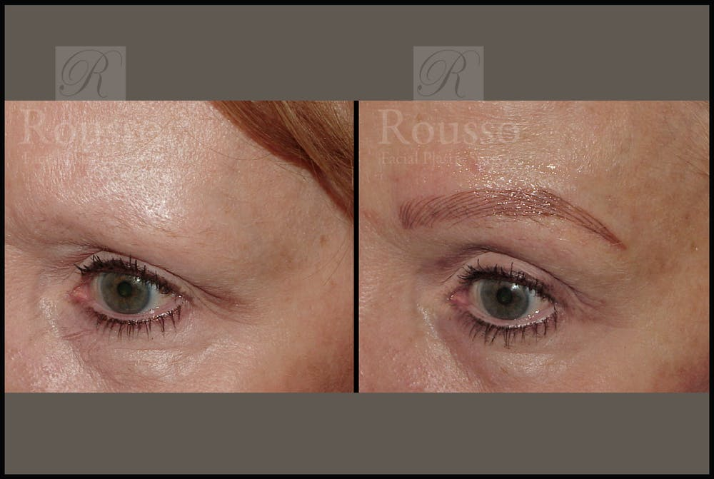 Microblading Gallery - Patient 50818368 - Image 1