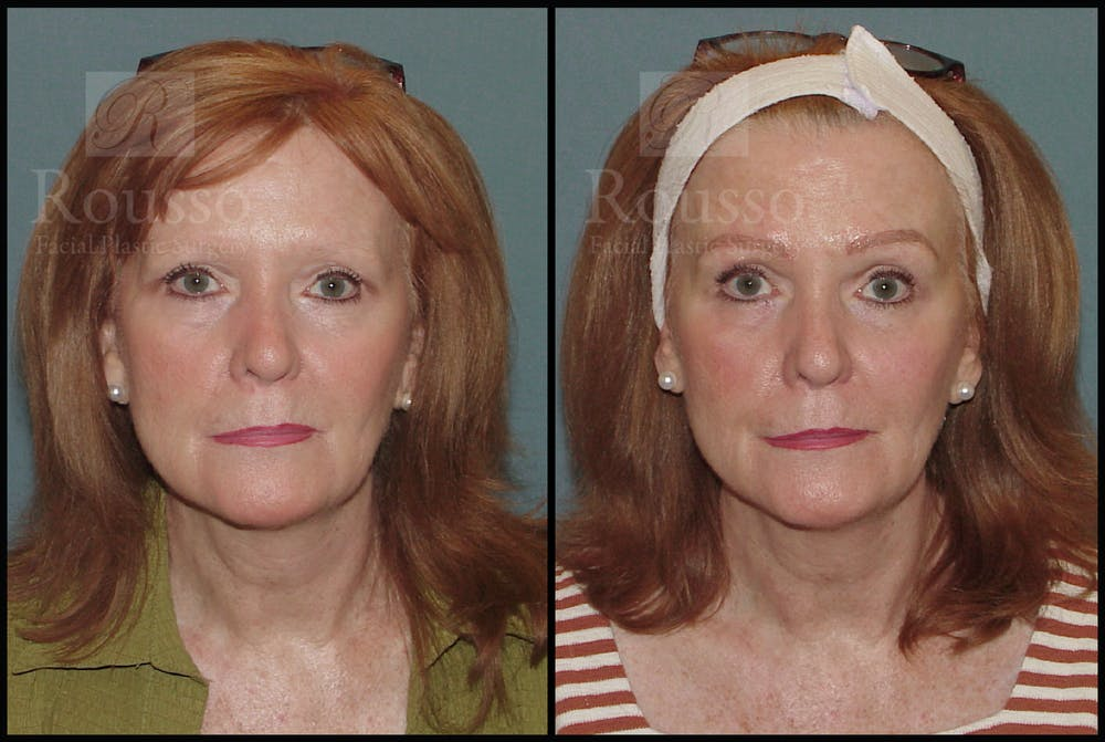 Microblading Gallery - Patient 50818368 - Image 2