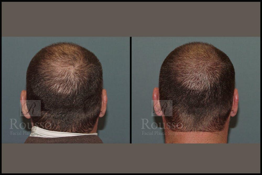 Scalp MicroPigmentation Gallery - Patient 51667890 - Image 4