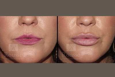 Fillers Gallery - Patient 52313943 - Image 1