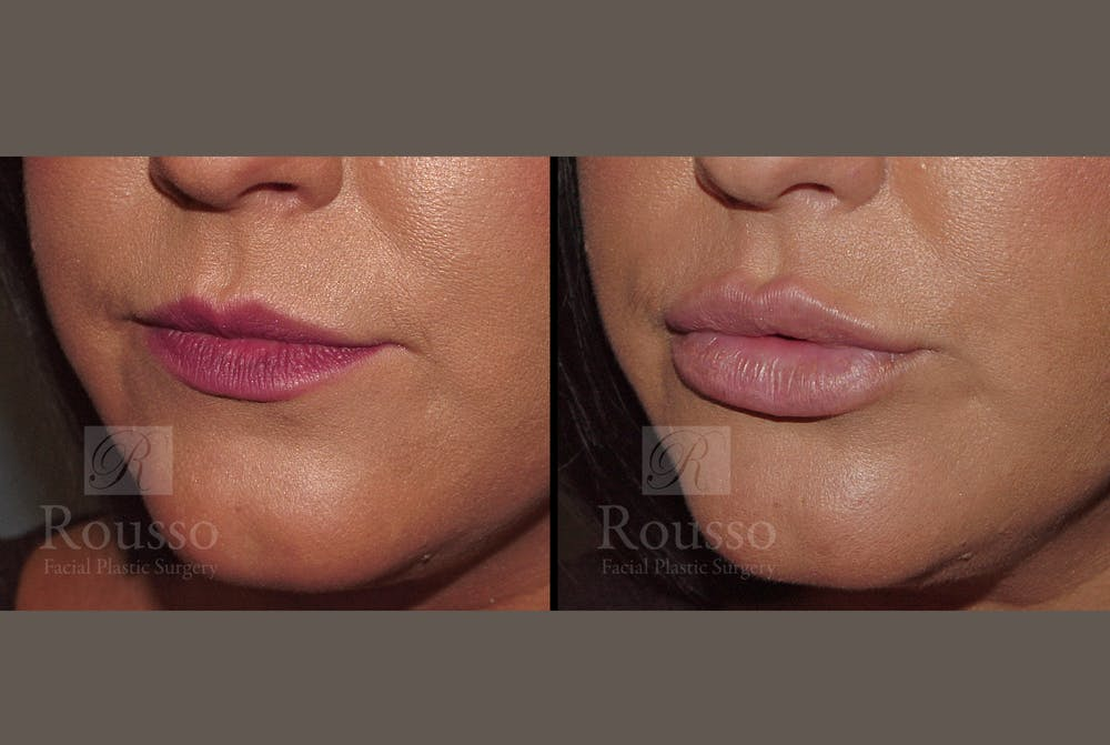 Fillers Gallery - Patient 52313943 - Image 2