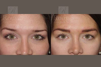 Microblading Gallery - Patient 52313981 - Image 1