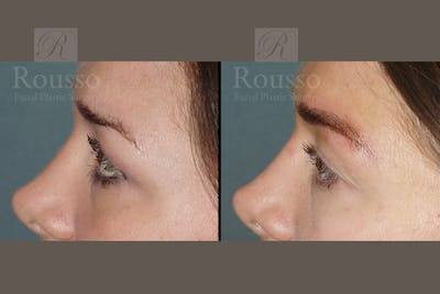 Microblading Gallery - Patient 52313981 - Image 2