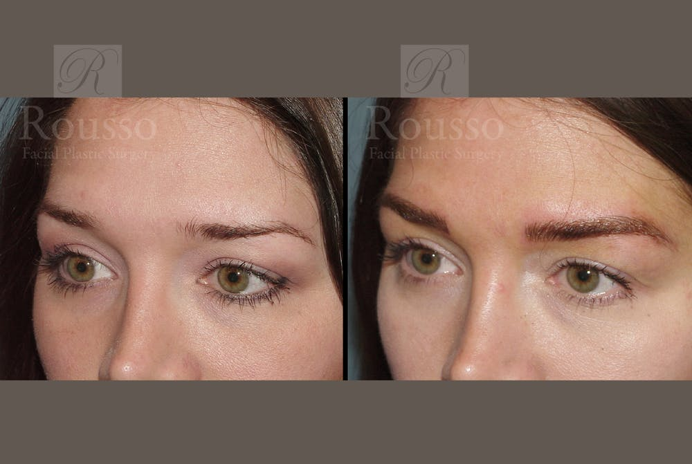 Microblading Gallery - Patient 52313981 - Image 3
