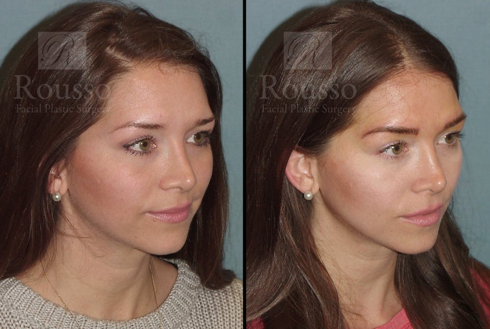 Microblading Gallery - Patient 52313981 - Image 4