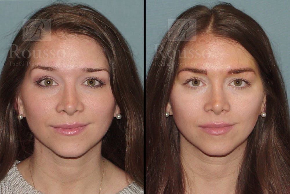 Microblading Gallery - Patient 52313981 - Image 5