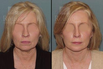 Facelift Gallery - Patient 52520227 - Image 1