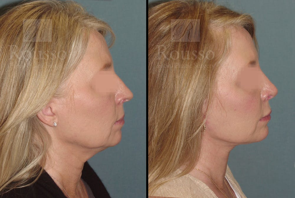 Facelift Gallery - Patient 52520227 - Image 2