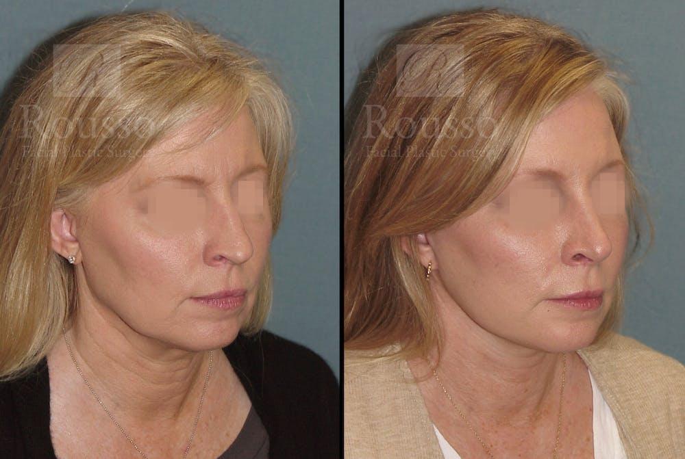 Facelift Gallery - Patient 52520227 - Image 3