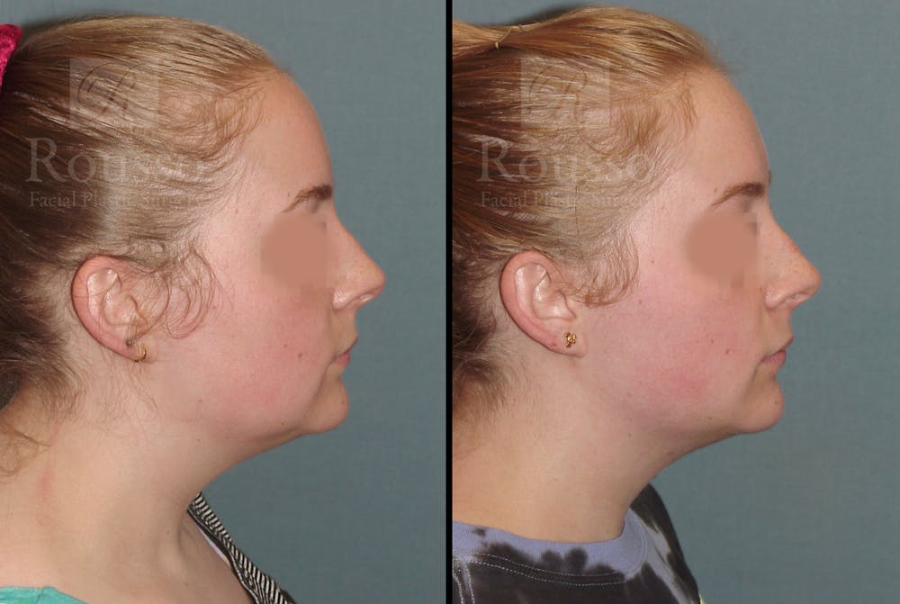 Acculift Gallery - Patient 53239072 - Image 3