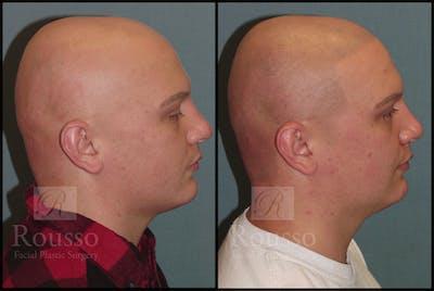 Scalp MicroPigmentation Gallery - Patient 6385036 - Image 1