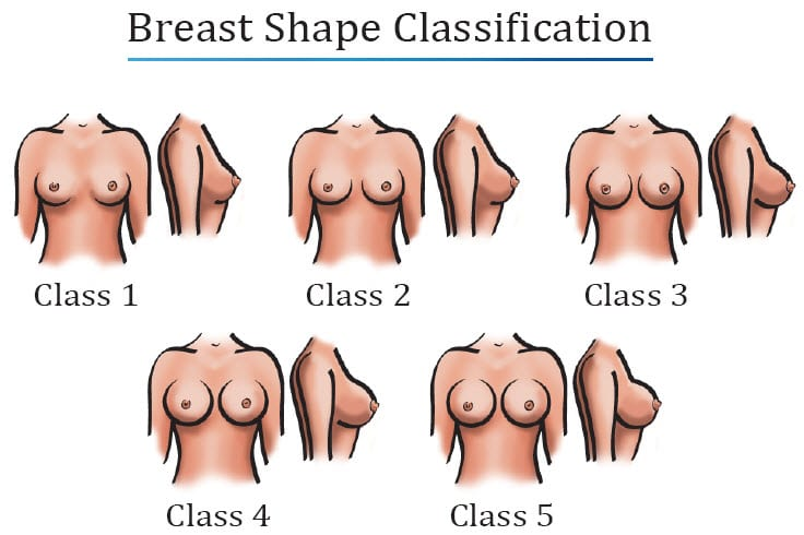 Breast Shape Classification Diagram