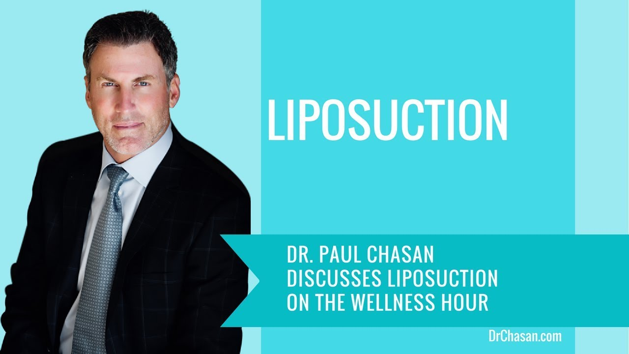 Dr. Chasan discussing liposuction