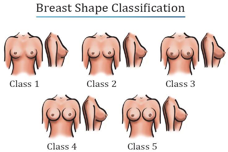 breast-shape-classification